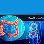 تشخیص-سرطان-روده